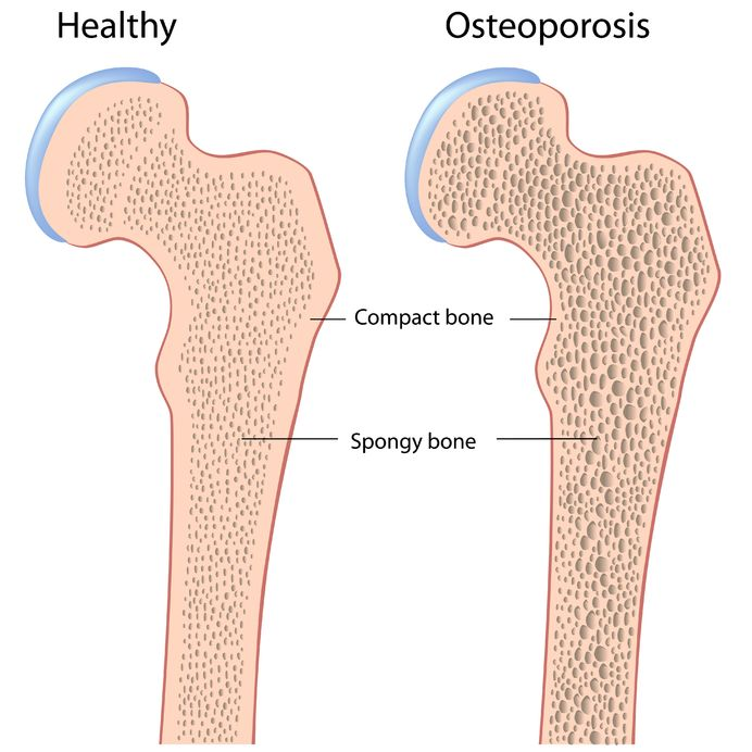 Osteoporosis in Men - Bone Density and Signs of Bone Loss