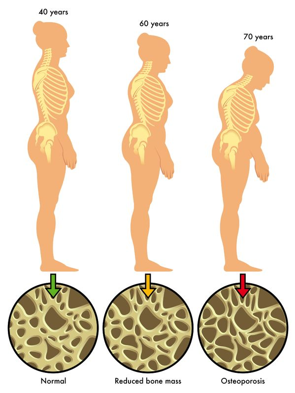 Osteoporosis in Women - Curved Spine with Age