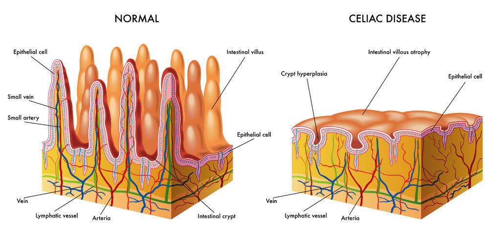 Normal small intestine vs. celiac disease