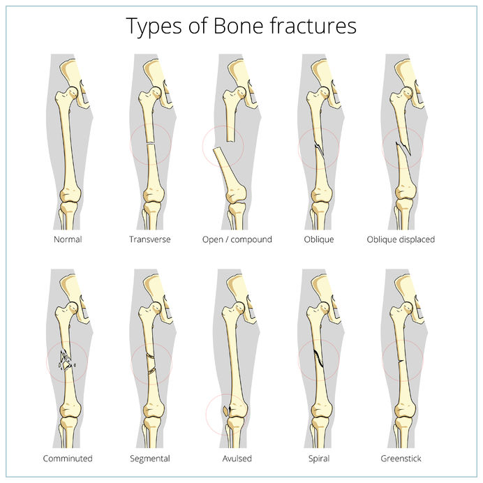 Different types of bone fractures Term paper Academic Service ...