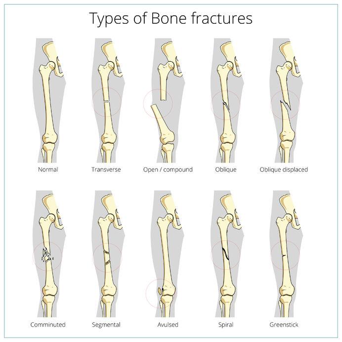 Bones Fractures - Types