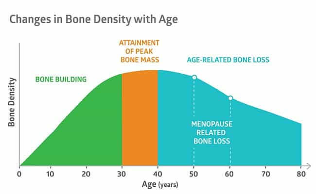 Graph of Changes in Bone Density with Age
