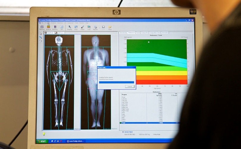 bone density test - dexa scan