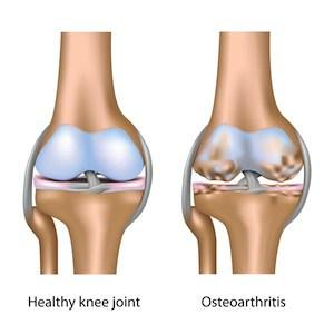 omega 3 osteoarthritis
