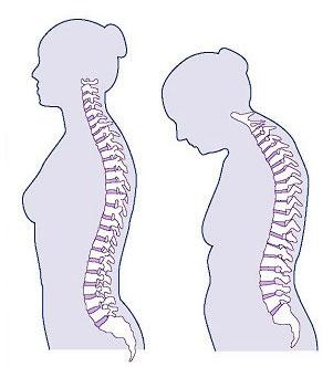 osteoporosis symptoms - height