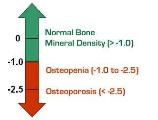 Osteopenia and DEXA scan results image