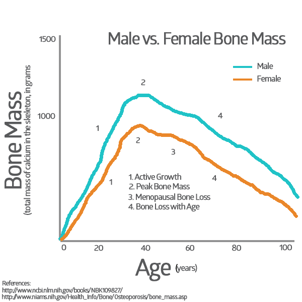 Osteoporosis in Women - Male vs. Female Osteo