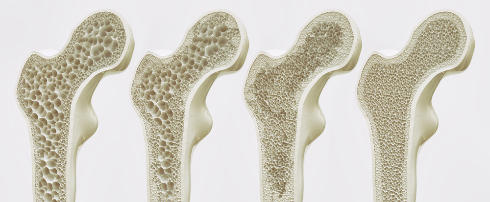 Reverse Engineer Your Bone Loss