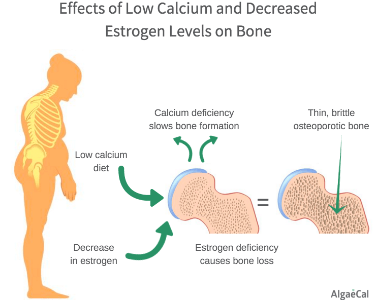 Postmenopausal Osteoporosis - Low Calcium and Estrogen