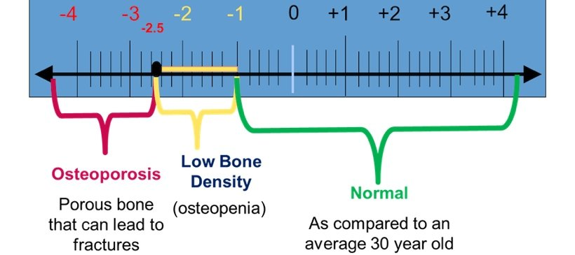prevention and treatment of osteoporosis in postmenopausal women