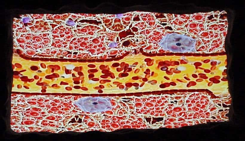 blood algae image