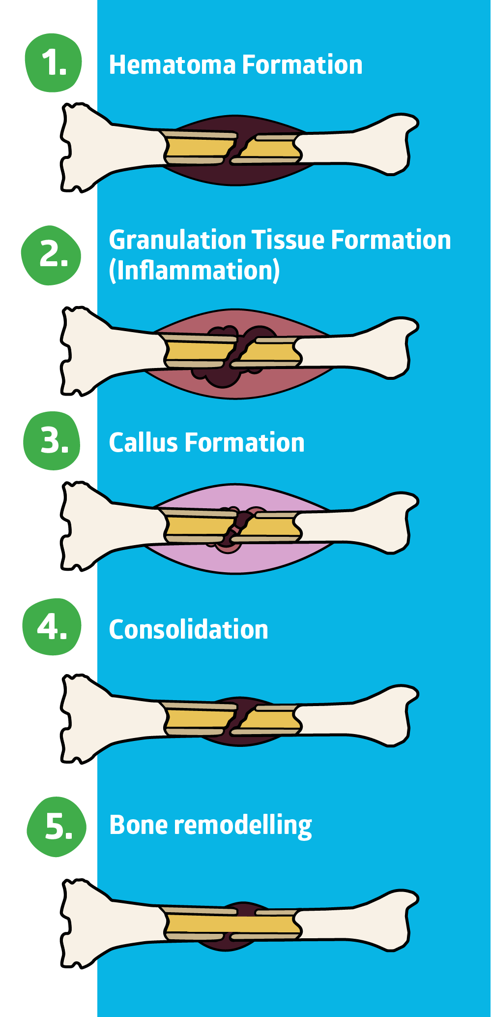 5 Stages of Bone Healing