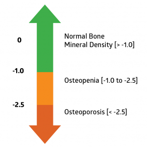 How Long Does It Take To Get Dexa Scan Results Back