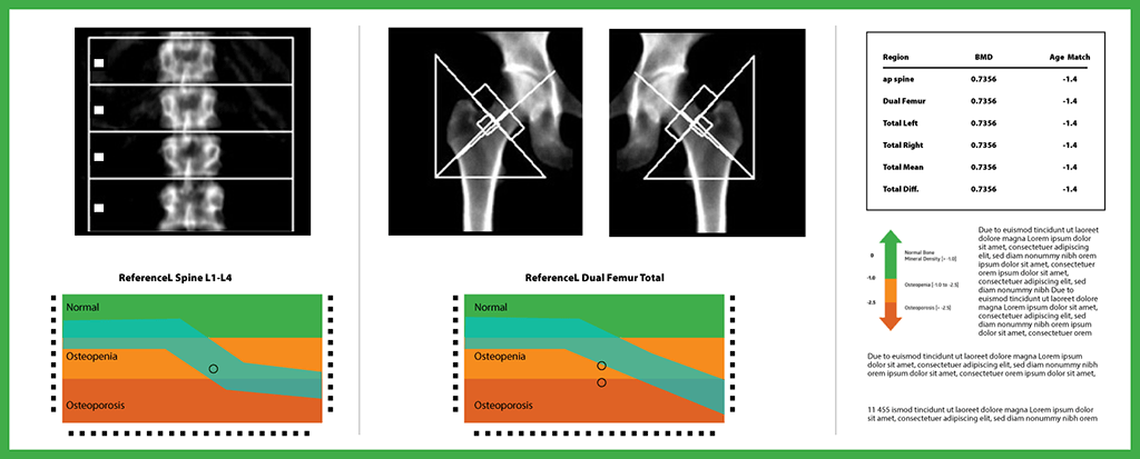 The Peripheral Bone Density Tests Are Simpler
