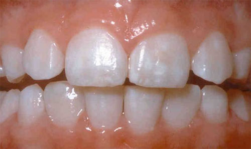 signs of fluorosis
