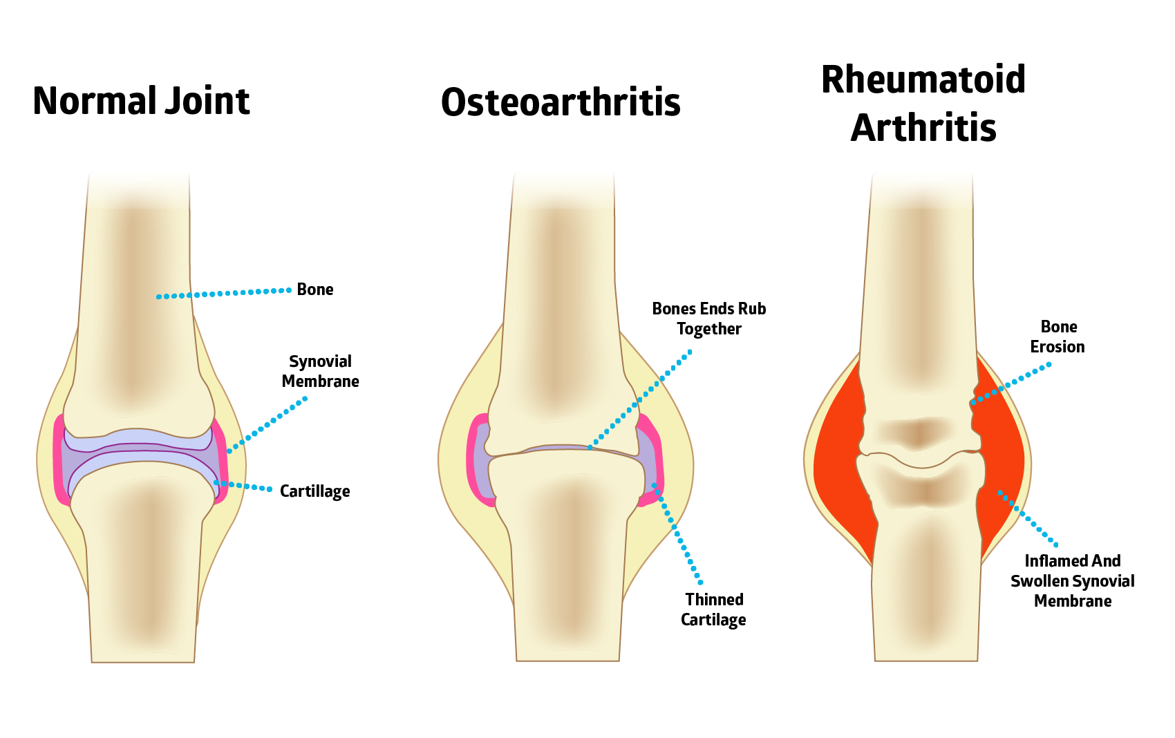 natural remedies for arthritis you can count on
