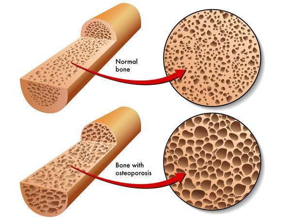 calcium supplement before bone density scan