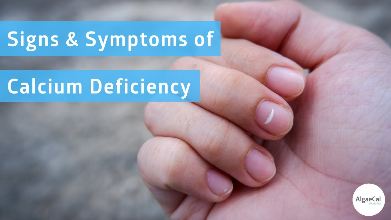 Calcium Deficiency Symptoms: 17 Signs To Watch Out For